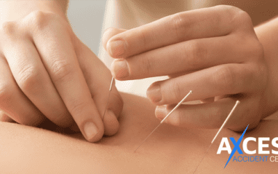 Acupuncture Available in Utah