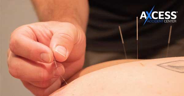 acupuncture blog image